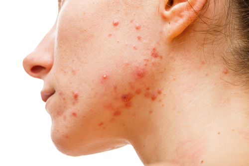PUT YOUR BEST FACE FORWARD: 3 Secret Recipes for Thyroid Acne Skin